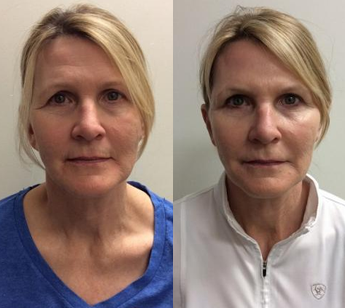 Before and After Juvéderm Treatment in Pasadena, CA