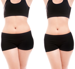 Before and After Body Contouring Treatment in Pasadena, CA